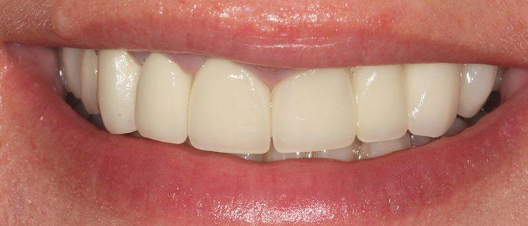 dental smile makeover in north-west london