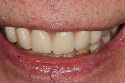 John after smile makeover at Dental Beauty Harrow in north-west london