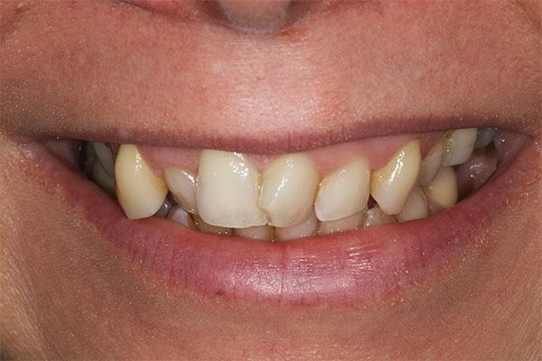 teeth straightening in harrow